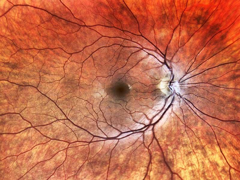 Retinal Imagery