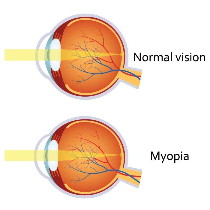 Myopia (Nearsightedness)