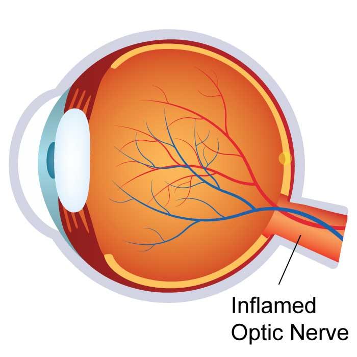 Optic Neuritis / Neuropathy