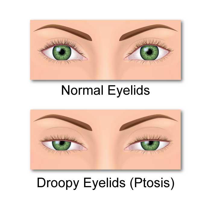 Ptosis (Drooping Eyelids)